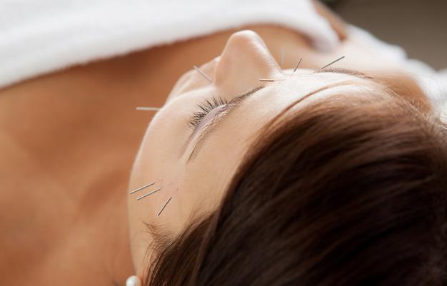 中医针灸美容效果可以维持多久?有副作用吗?
